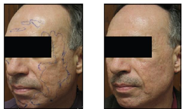 Before and After Results for a patient showing good results from an Acne Scar Treatment in San Antonio