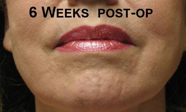 photo of woman after to subcision treatment for acne scars. She shows good improvement