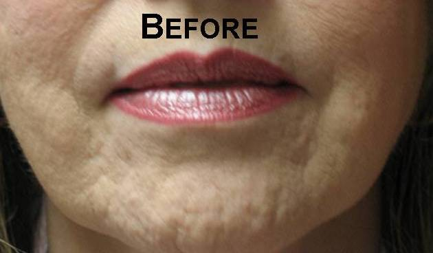 before photo of woman prior to subcision treatment for acne scars